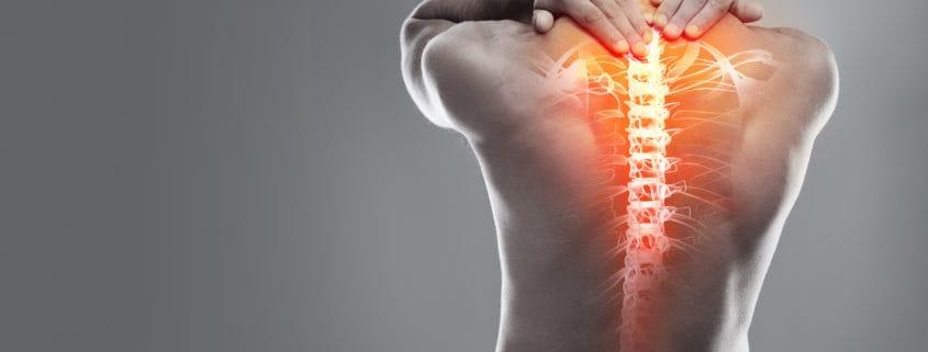 spinal injury attorney